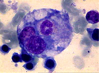 Hemophagocytosis_1